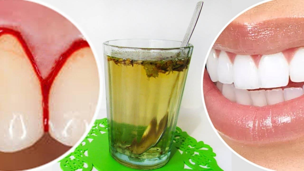 Неприятный запах от десен: причины, сопутствующие симптомы и лечение