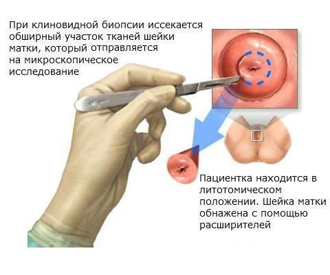 Можно ли рожать с эрозией шейки матки и после ее прижигания? как избежать осложнений?