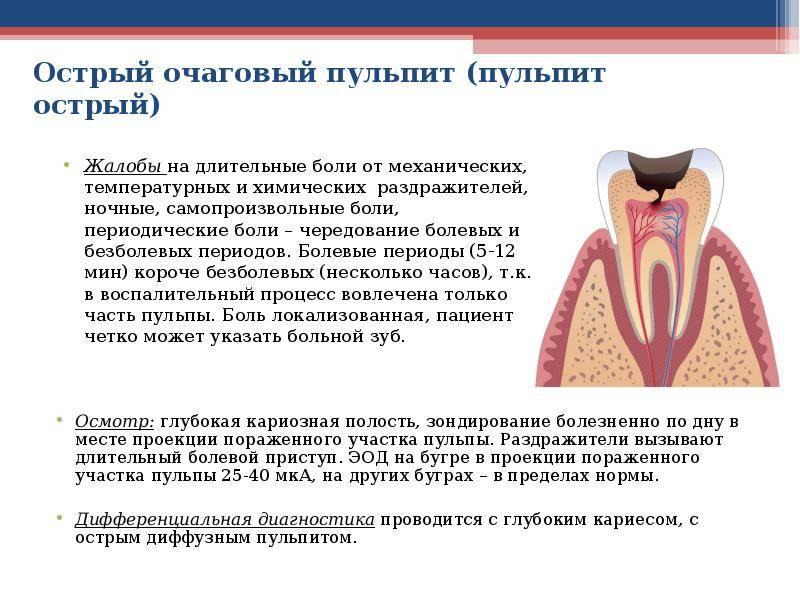 Симптомы кариеса дентина и его лечение