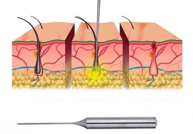 После электроэпиляции — реабилитация лица и тела