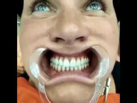 Нестать жертвой рекламы: сколько реально стоит имплантация зубов