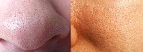 Способы сужения пор на лице