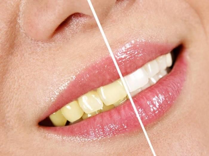 Желтые зубы: причины и способы отбеливания