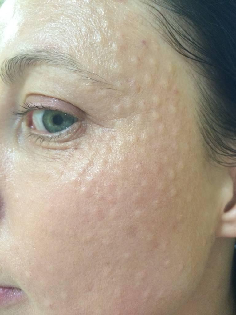 Уход за кожей лица и ограничения после биоревитализации