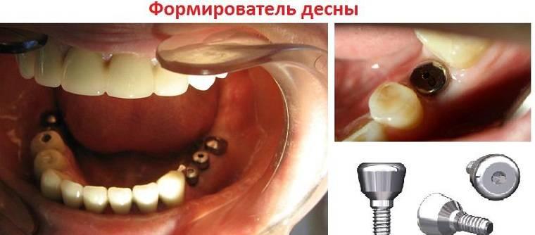 Как проводится имплантация зубов – поэтапная процедура имплантации зубов в деталях
