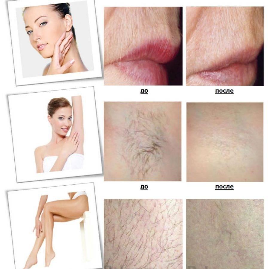 Электроэпиляция зоны бикини: можно ли избавиться от нежелательных волос навсегда