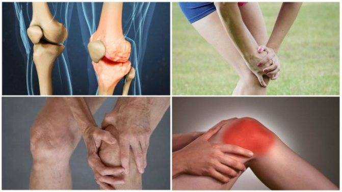 Боли в суставах при климаксе: причины и методы лечения