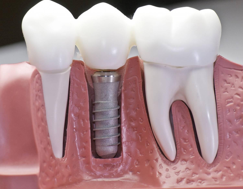 Одноэтапная имплантация зубов за 1 день