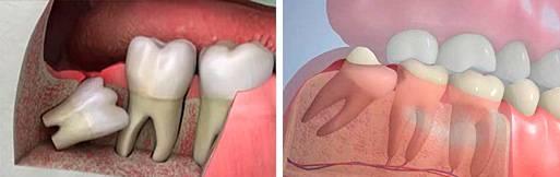 Воспаление капюшона зуба мудрости: причины, лечение