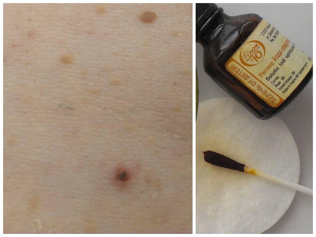 Лазерное удаление папилломы: уход и правила обработки после процедуры