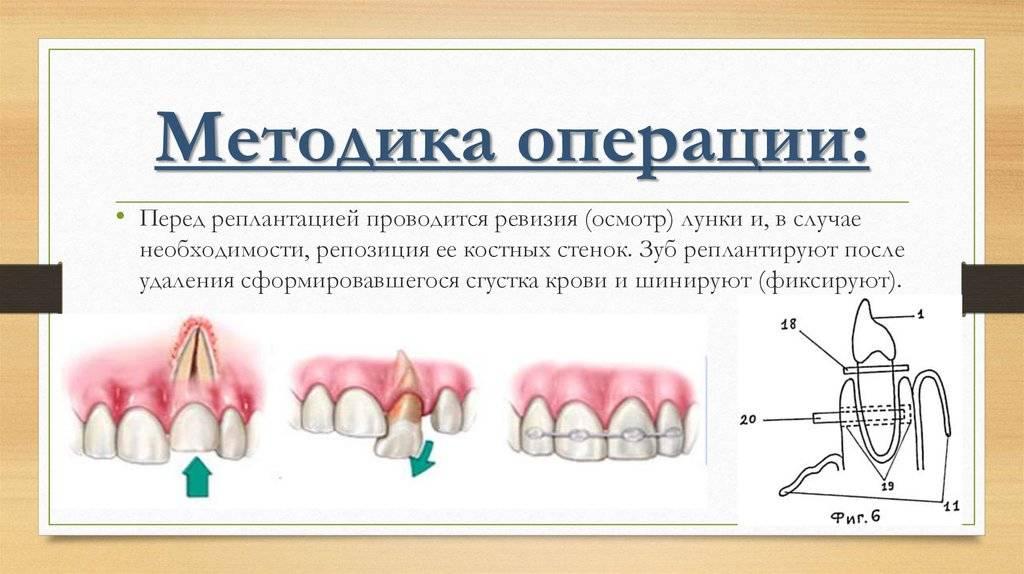 Вывих зуба: основные симптомы и методы лечения