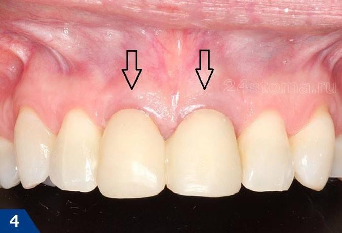 Разновидности и особенности коронок на зубы