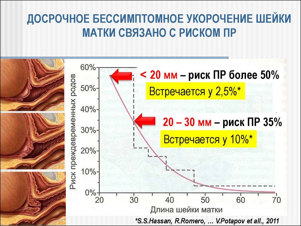 Изменение длины шейки матки во время беременности
