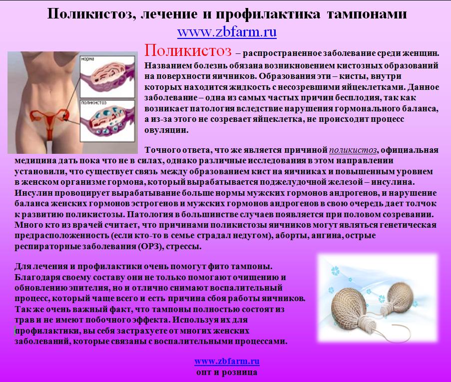 Поликистоз яичников (спкя) после гормональных контрацептивов