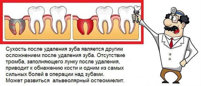 Несколько стоящих советов: что делать, если болит ухо после удаления зуба мудрости или появилась боль в горле?