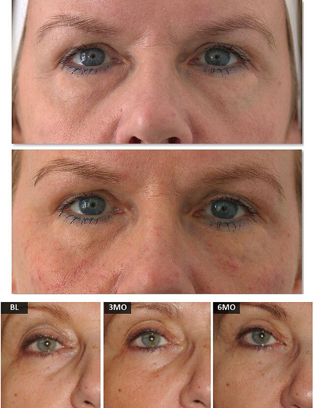 Мезотерапия вокруг глаз
