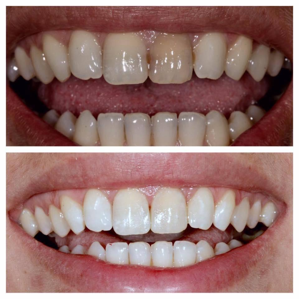 Opalescence boost для отбеливания ваших зубов