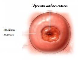 Псевдоэрозия шейки матки