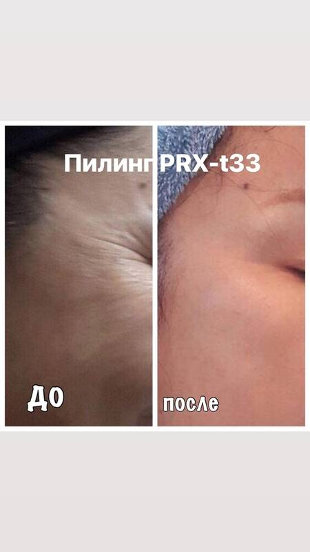 Пилинг prx t33 — инновационный прорыв в современной косметологии