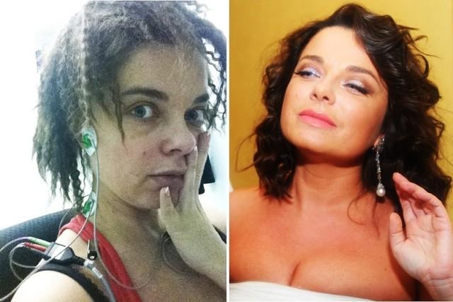 Певица ханна до и после операции. ханна и сенсационные пластические операции: новое лицо – путь к успеху