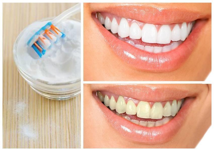 Можно ли использовать пищевую соду для чистки зубов?