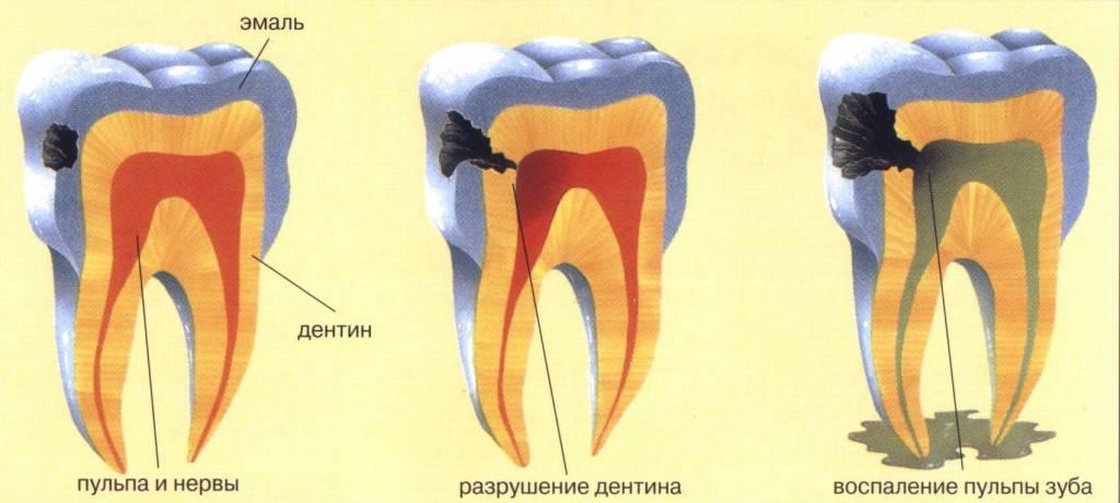 Причина начать беспокоиться – почему возник кариес сбоку зуба?