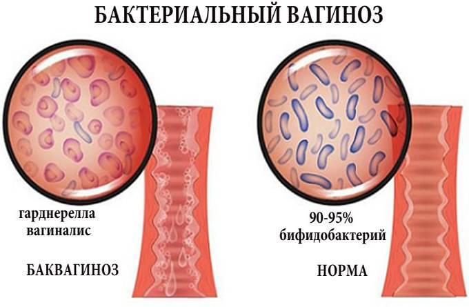 Чем лечат бактериальный вагиноз: перечень препаратов, отзывы