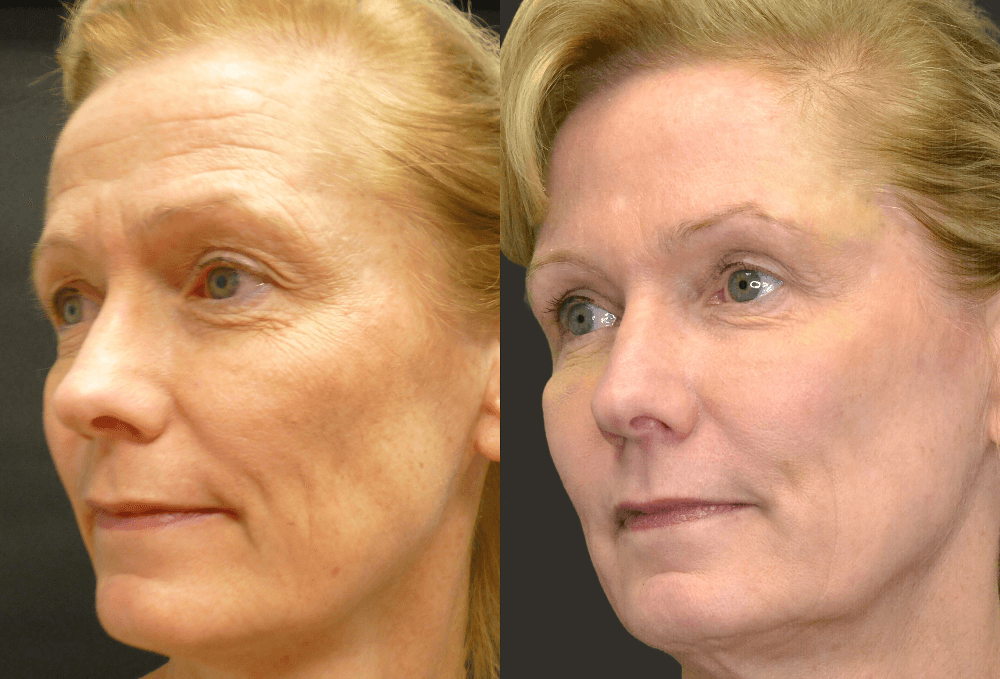 Какой эффект дает ботокс для кожи вокруг глаз