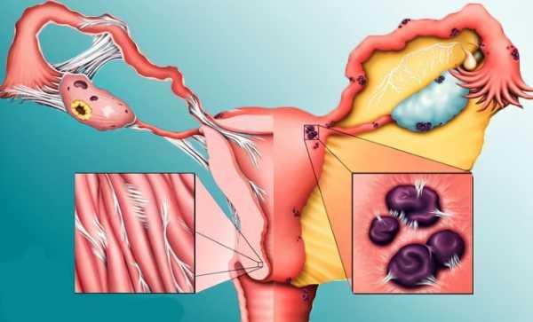 Симптомы и лечение эндометриоза у женщин после 40 и 50 лет