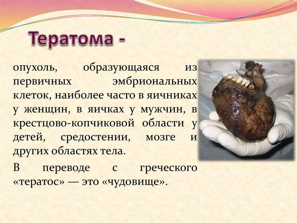 Тератома яичника или опухоль, которая должна быть удалена