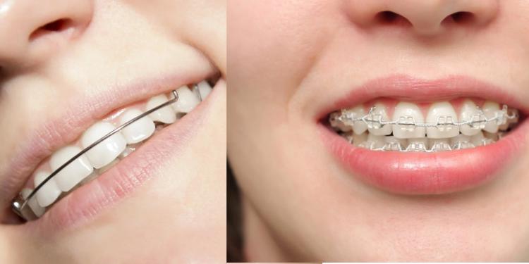 Как создать идеально ровную улыбку: брекеты или капы, что лучше?