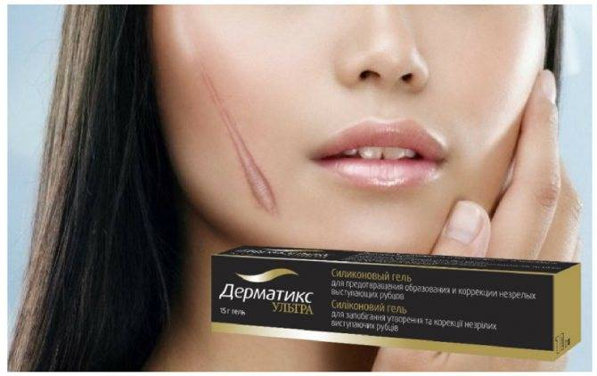 Лечение шрамов и дефектов кожи с помощью «дерматикс гель»