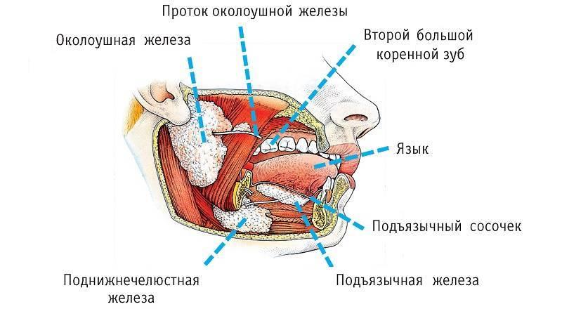 Симптомы кисты слюнной железы и методы лечения