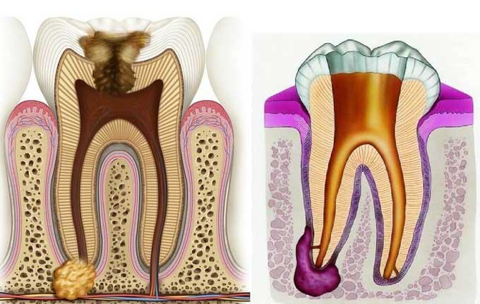 Воспаление надкостницы зуба: лечение, симптомы периостита