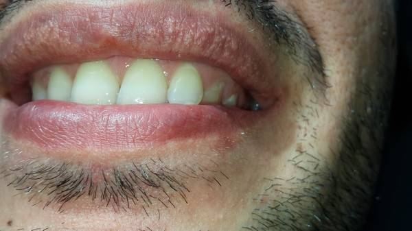 Черные точки на губах. что делать с чёрной точкой на губе?