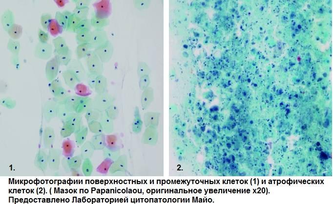 Эстрогенный тип мазка в менопаузе хорошо или плохо