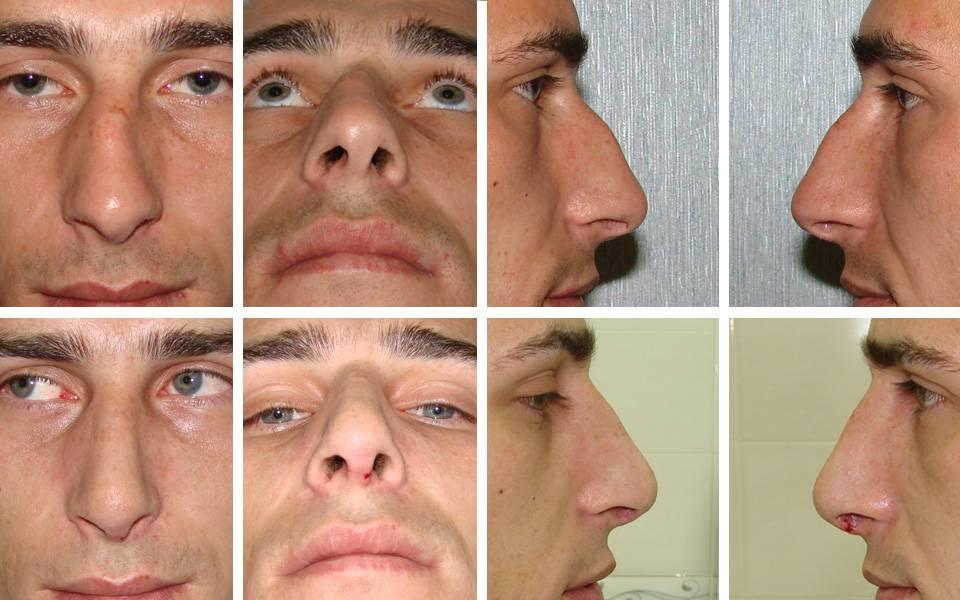 Реабилитация после пластической операции носа: этапы, осложнения