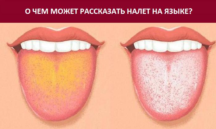 Причины появления желтого налета на языке у ребенка