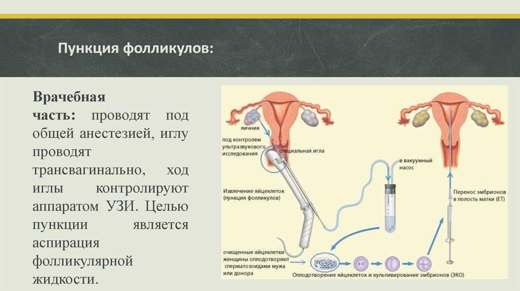 Пункция или прокол кисты яичника