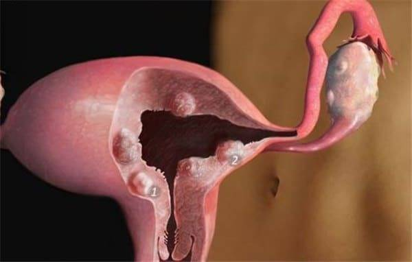 Жидкость в малом тазу у женщины: симптомы, причины и лечение