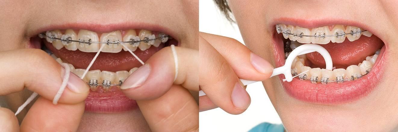Съем брекетов: как происходит и сколько по времени снимают с двух челюстей?