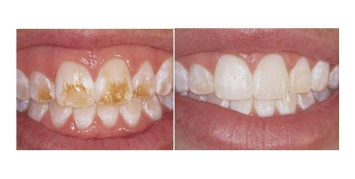 Разновидности и симптомы гипоплазии эмали у детей и взрослых, причины возникновения патологии, лечение зубов