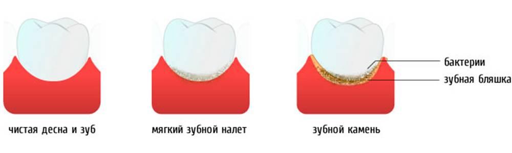 Налет пристли на молочных зубах у ребенка: причины, лечение, профилактика