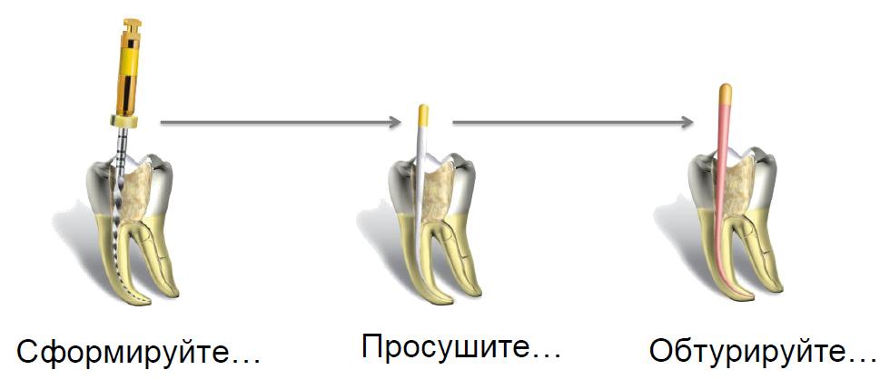 Обтурация корневых каналов