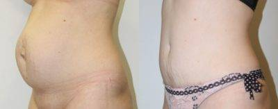 Симптомы и лечение пупочной грыжи после родов