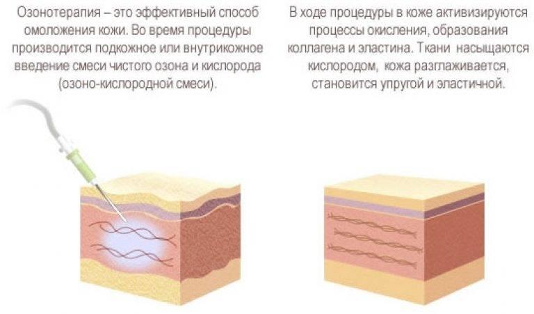 Способы лечения выпадения (алопеции) волос