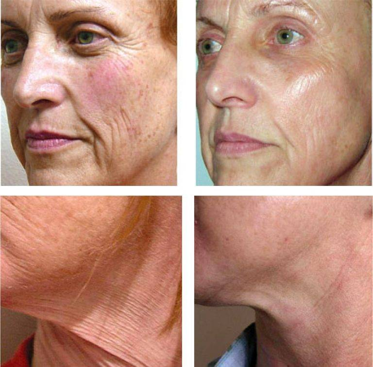 Мезотерапия лица – фото до и после процедуры