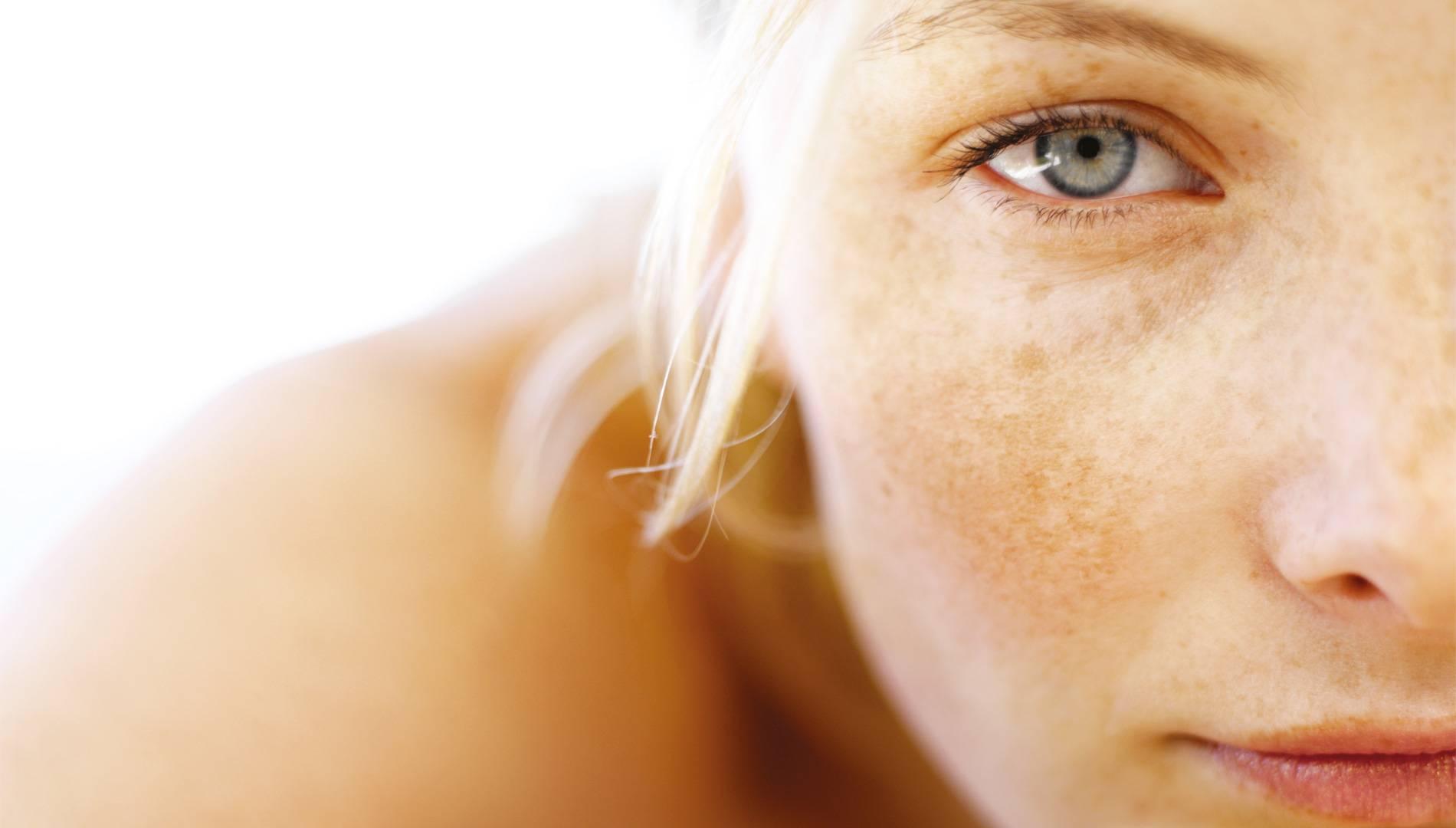 Как избежать фотостарения кожи?