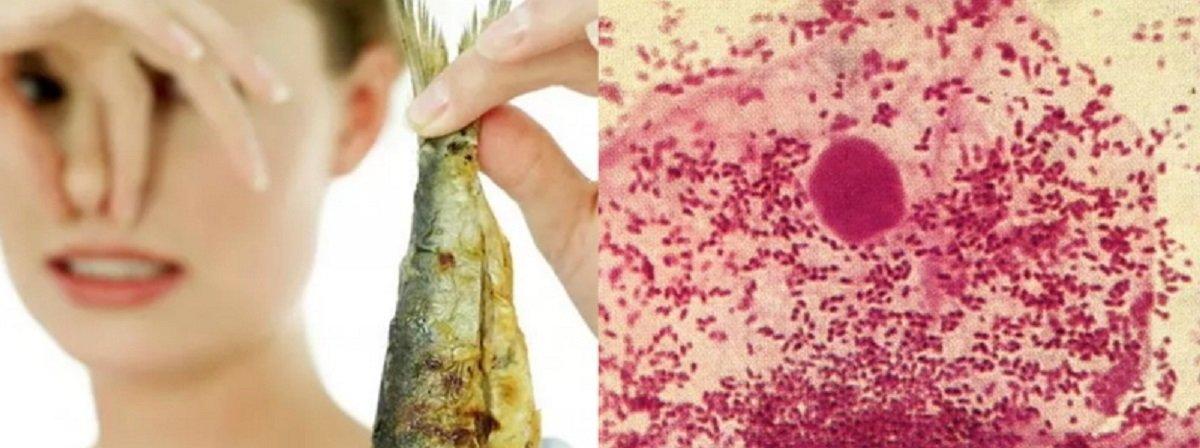 Вагиноз бактериальный