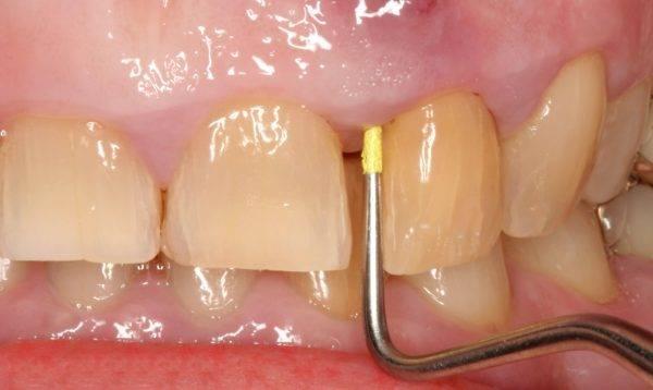 Воспаление надкостницы зуба: лечение